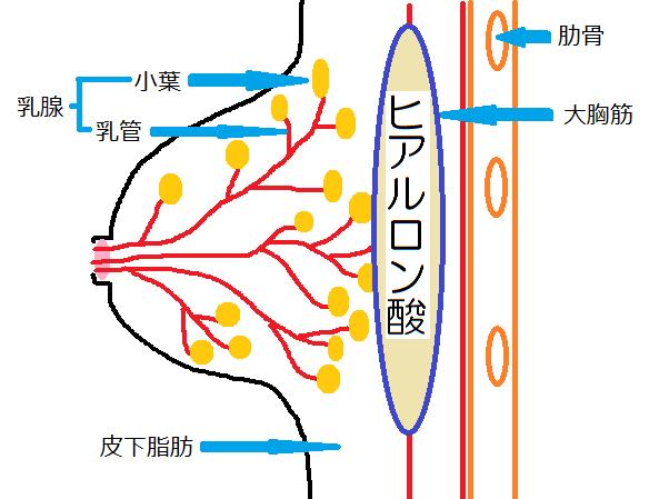 houkyou-hiaruronnsann